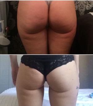Non Surgical Brazilian Bum Lift | Based in Romford Essex